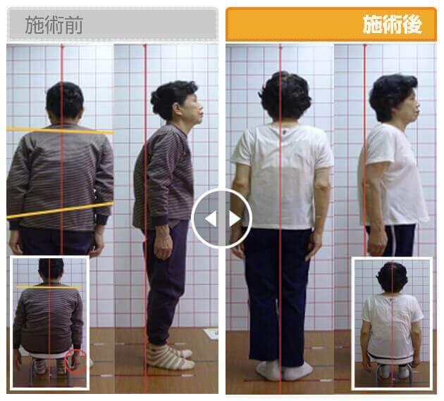 72歳 女性の施術ビフォーアフター
